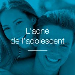 L'acné de l'adolescent
