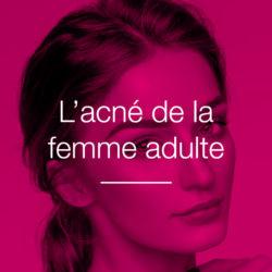 acné de la femme adulte